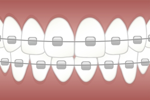 More about Invisalign 27